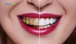 dientes.amarillos