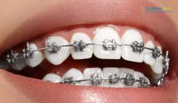 brackets.frenillos