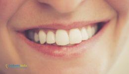 dientes.blancos.blanqueamiento.dental