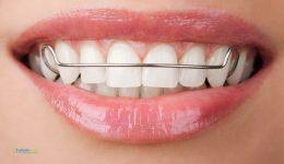 retenedores.dentales