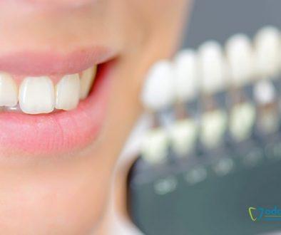 causas.dientes.amarillos